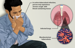 Tuberculosis and its Ayurvedic Approach