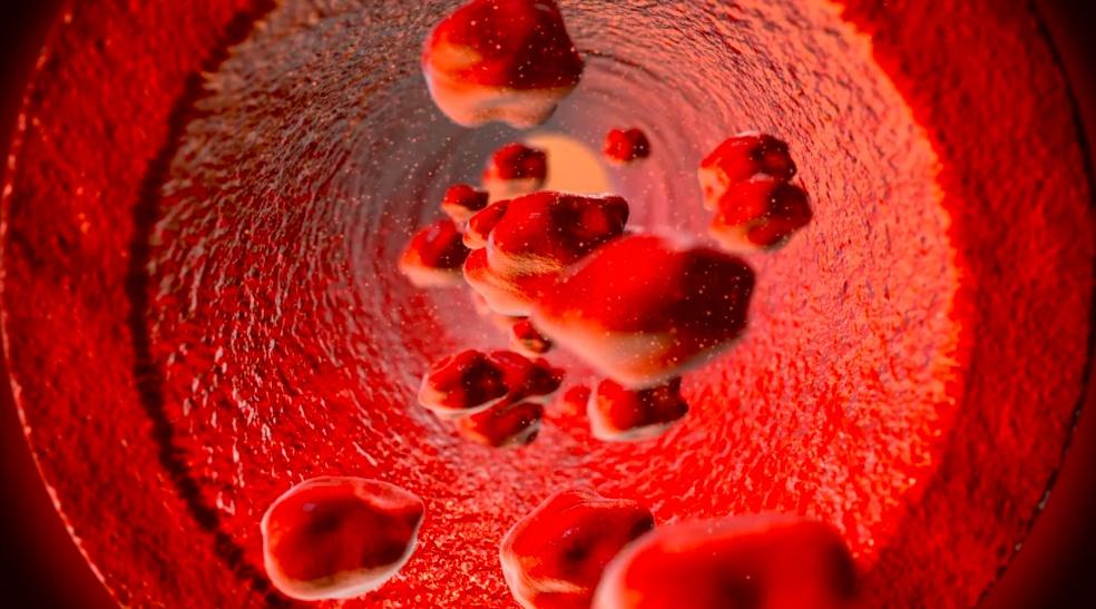 Haemophilia: the Blood Clotting Disease
