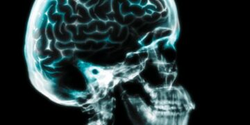 Meningitis-Symptoms, Risk factors and Ayurveda approach