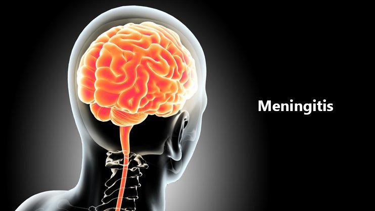 Meningitis and its Alternative Approch