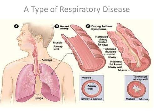 ASTHMA -Alternative Approach and Management