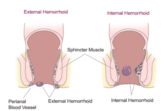 Haemorrhoids- It's types And Scope Of Homeopathic Management