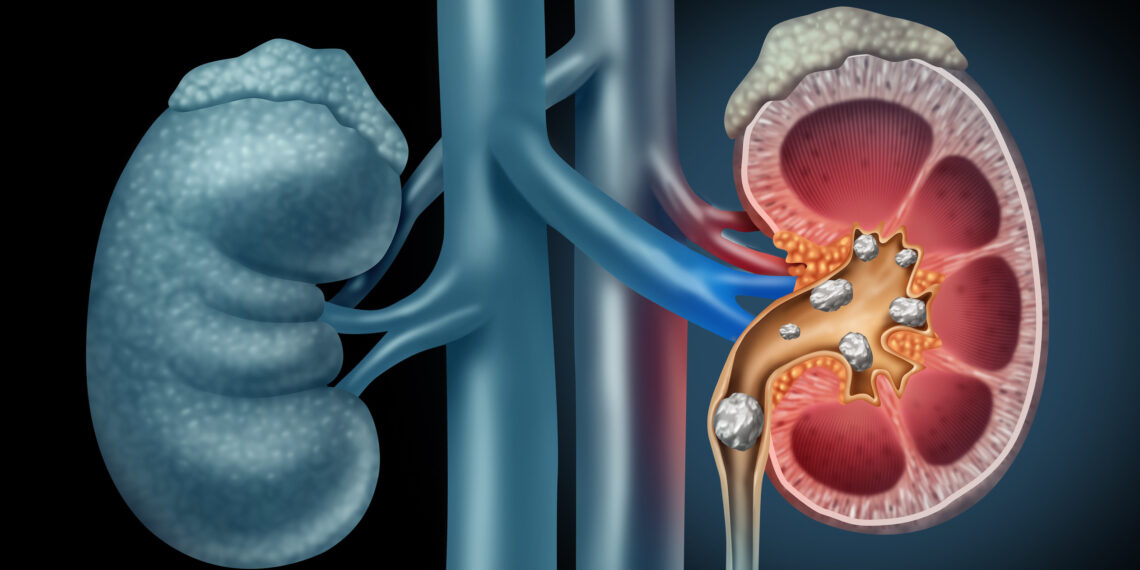 Homoepathy And It's Role in Renal Caliculi Treatment