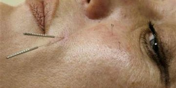 Suffering from Hepatitis? Can acupuncture give relief?
