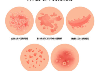 Psoriasis and role of homeopathy in its treatment