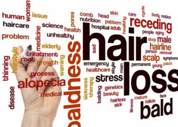 Get rid of alopecia with homeopathy